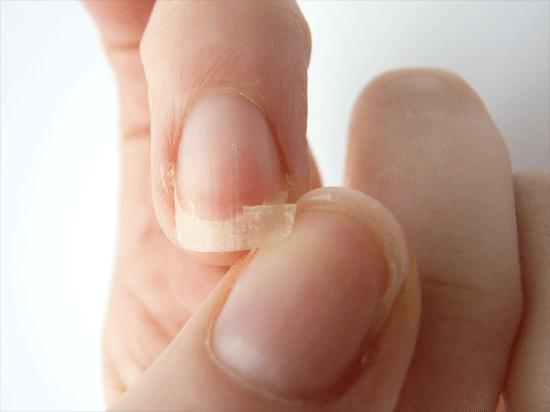 Fix-Broken-Nail
